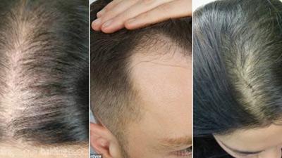 Tóc rụng nhiều, bạc sớm và mách nước hiệu quả cho bạn