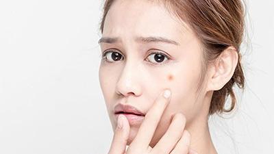 Hết sạch mụn nhờ thuốc thảo dược: Hiệu quả chỉ sau 1 ngày